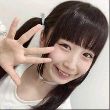 16歳のアイドルが整形告白! フラップガールズスクール・齋藤雛乃「まぶたのおさいほう」