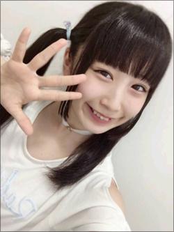 16歳のアイドルが整形告白! フラップガールズスクール・齋藤雛乃「まぶたのおさいほう」の画像1