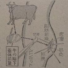 勃起したペニスが戻らない! 効き過ぎた精力剤事件「牛の脳下垂体移植法」